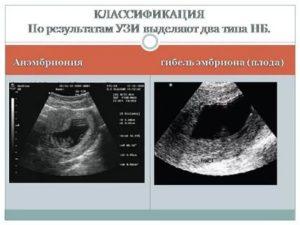 Неразвивающаяся маточная беременность по типу анэмбрионии