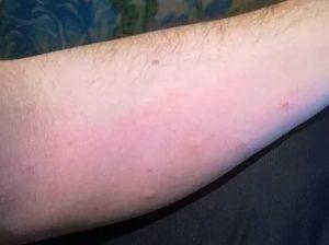 Высыпания на коже похожие на комариные укусы