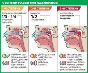 Как вылечить аденоиды 1-2 степени