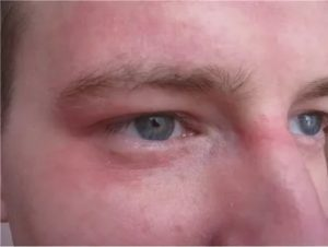 Покраснение в области носа