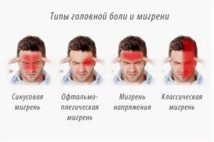 Головная боль в лобной части после мытья головы