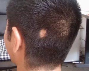 Пятно на голове без волос