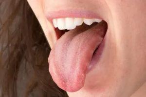 Сосочки сбоку языка