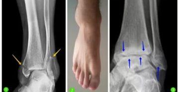 Консолидированный остеоэпифизеолиз наружной лодыжки правой малоберцовой кости