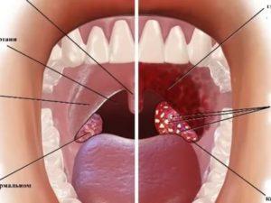 Больно глотать и не понятные шишки в горле