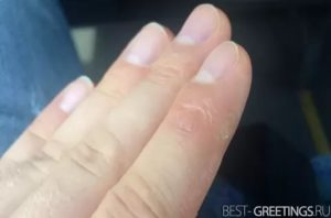 Уплотнения и трещины на пальцах рук