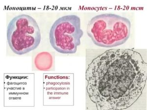 Моноциты 18%