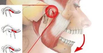 Болит челюсть после удара