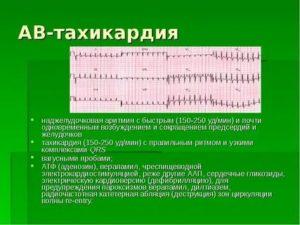 Наджелудочковые аритмии