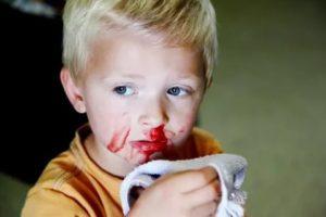 Частые кровотечения из носа у ребенка
