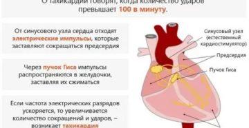 Приступы тахикардии при простуде