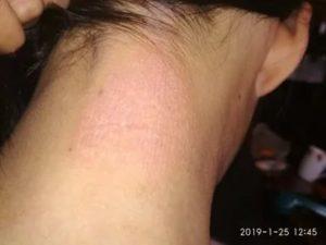 Красные припухшие пятна по телу, на голове чешутся шелушаться