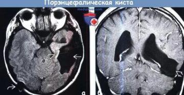 Порэнцефалическая киста головного мозга 4,4x3,9 см