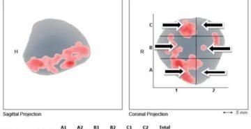 ПСА-2,8 Гистосканинг предстательной железы