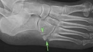 Краевой перелом кубовидной кости