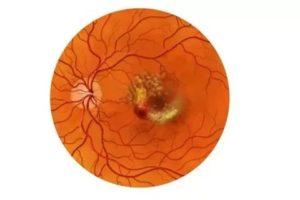 Дистрофия сетчатки при беременности