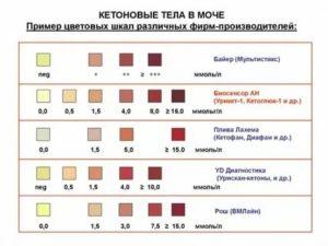 Кетоны в моче 20 мг/дл