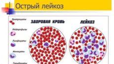Повышение тромбоцитов при лейкозе