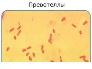 Prevotella spp