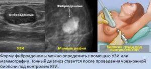 Боль в молочной железе после биопсии полгода