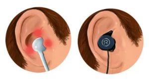 Болит ухо от наушников