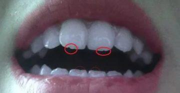 Ямка на зубе
