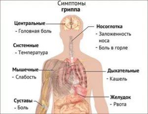 Простуда, болит голова, горло, ломит тело