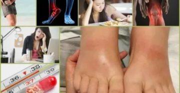 Как снять сильное обострение артрита?