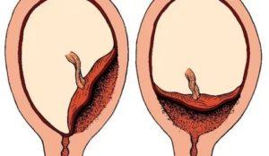 Выделения при беременности при низком плацентации!