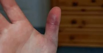 Лопнула вена на пальце руки, образовался синяк