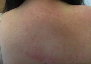 Красная сыпь в нижней части спины