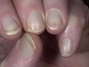 Почему неровный Белый край на ногтях