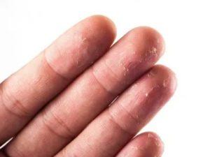 Сухие пузыри на коже рук
