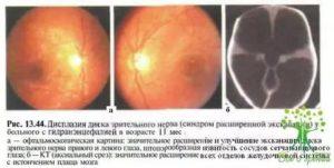 Дисплазия диска зрительного нерва