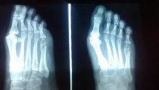 Косой перелом 5 плюсневой кости