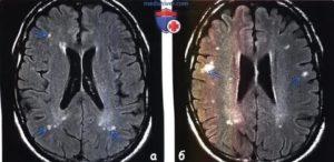 Постгипоксические изменения головного мозга. Прошу прокоментировать р-т МРТ