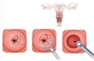 Биопсия шейки матки (заживляющие свечи)