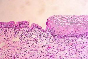 Эктопия плоскоклеточная метаплазия