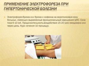 Электрофорез с бромом на воротниковую зону при беременности