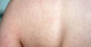 Мигрирующая сыпь у ребенка, по типу крапивницы