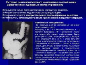 Консультация по описаниею ирригоскопии