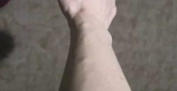 Вздутие вены на кисти руки в виде шариков