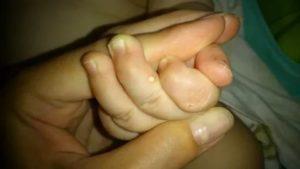 Прыщики на пальцах у младенца