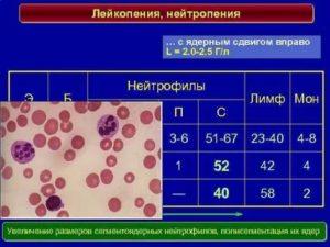 Лейкопения, нейтропения