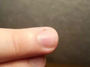 Повторное пятно под ногтем у ребёнка