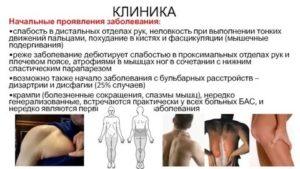 Фасцикуляции, мышечная слабость, тремор