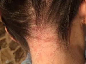 Зуд головы и шеи