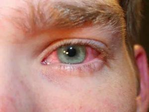 Покраснели оба глаза после капель