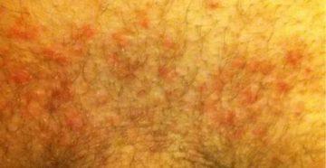 Увеличенные паховые лимфоузлы, высыпания на половых губах, молочница