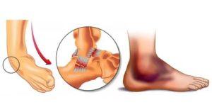 Хруст в голеностоп после растяжения